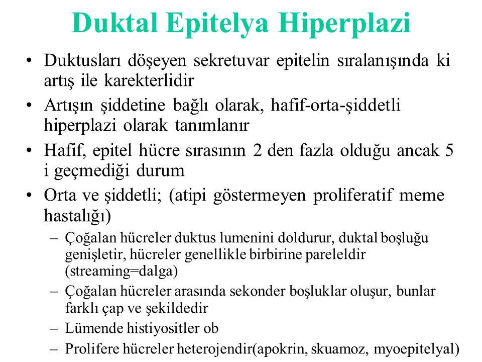 Duktal Epitelya Hiperplazi Duktusları döşeyen sekretuvar epitelin sıralanışında ki artış ile karekterlidir Artışın şiddetine bağlı olarak, hafif-orta-şiddetli hiperplazi olarak tanımlanır Hafif, epitel hücre sırasının 2 den fazla olduğu ancak 5 i geçmediği durum Orta ve şiddetli; (atipi göstermeyen proliferatif meme hastalığı) –Çoğalan hücreler duktus lumenini doldurur, duktal boşluğu genişletir, hücreler genellikle birbirine pareleldir (streaming=dalga) –Çoğalan hücreler arasında sekonder boşluklar oluşur, bunlar farklı çap ve şekildedir –Lümende histiyositler ob –Prolifere hücreler heterojendir(apokrin, skuamoz, myoepitelyal)