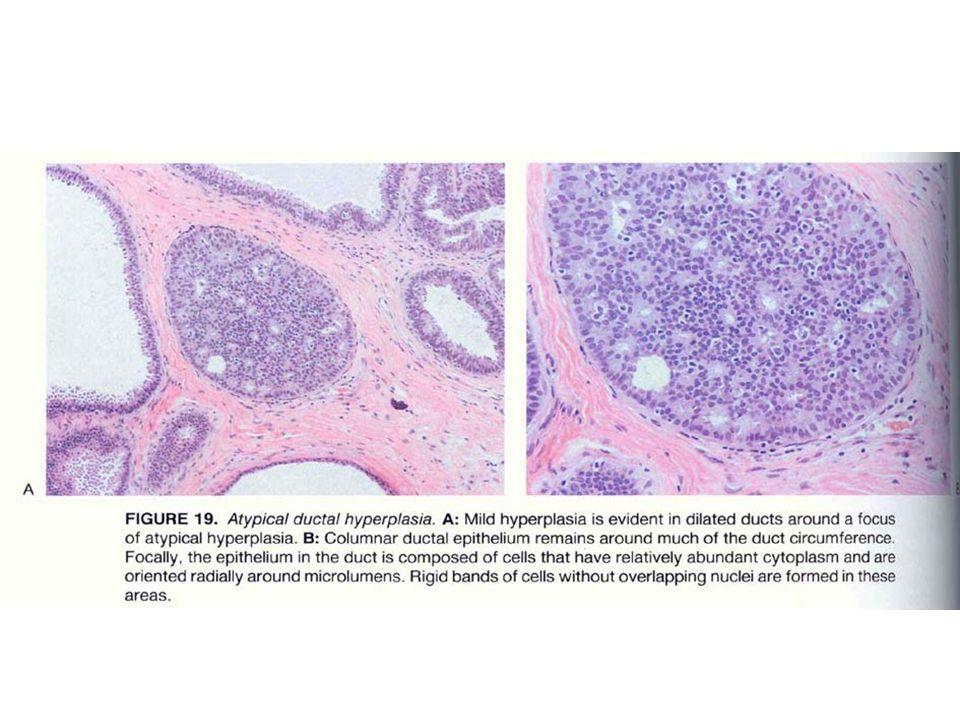 Lobüler Hiperplazi Atipik lobüler neoplazi- Lobüler neoplazi (LN1, LN2, LN3)LCIs ya benzer fakat lobülde ki asinilerin %50 sinden fazlasını tutmaz, tutar ise LCIS tanısı alır.