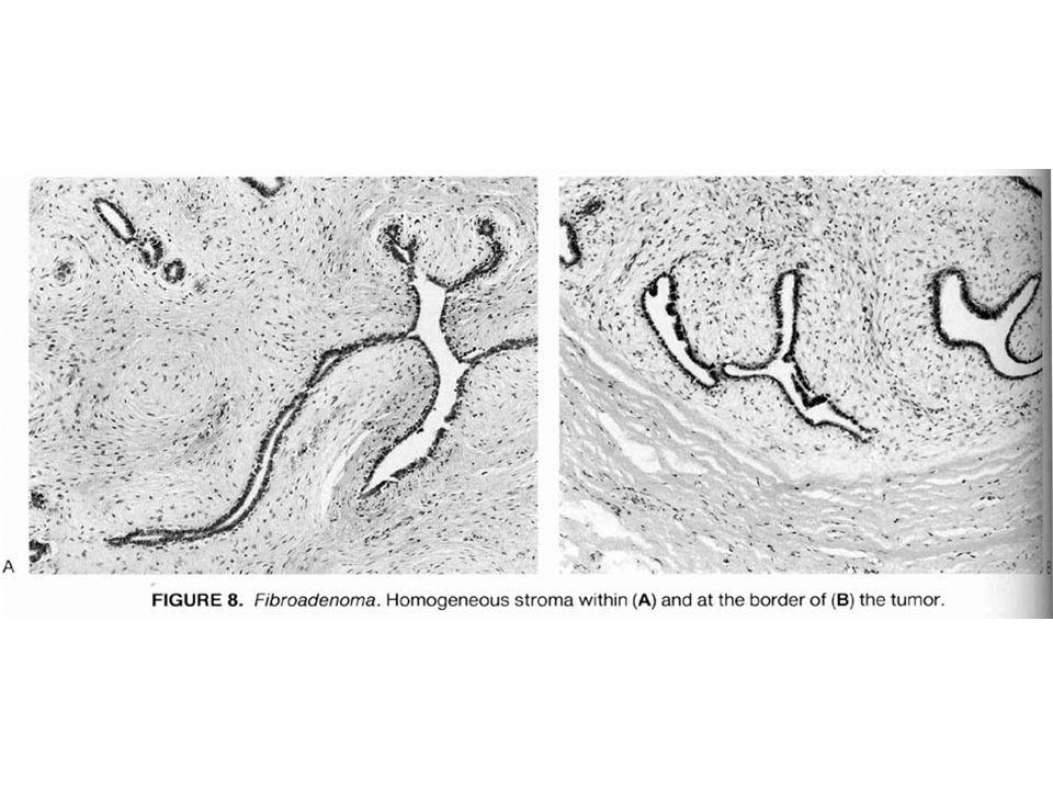 Filloides Tümör İntralobüler stromadan köken alan bifazik tümördür Her yaşta olabilir ise de 5-6.