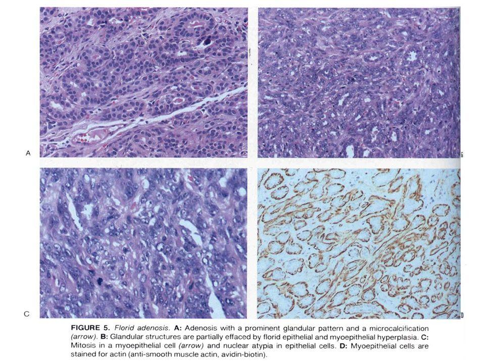 MEME KARSİNOMLARI Akciğer Ca ından sonraki en sık tümör Aile öyküsü olmayanlarda 25 yaş öncesi nadir, 4.