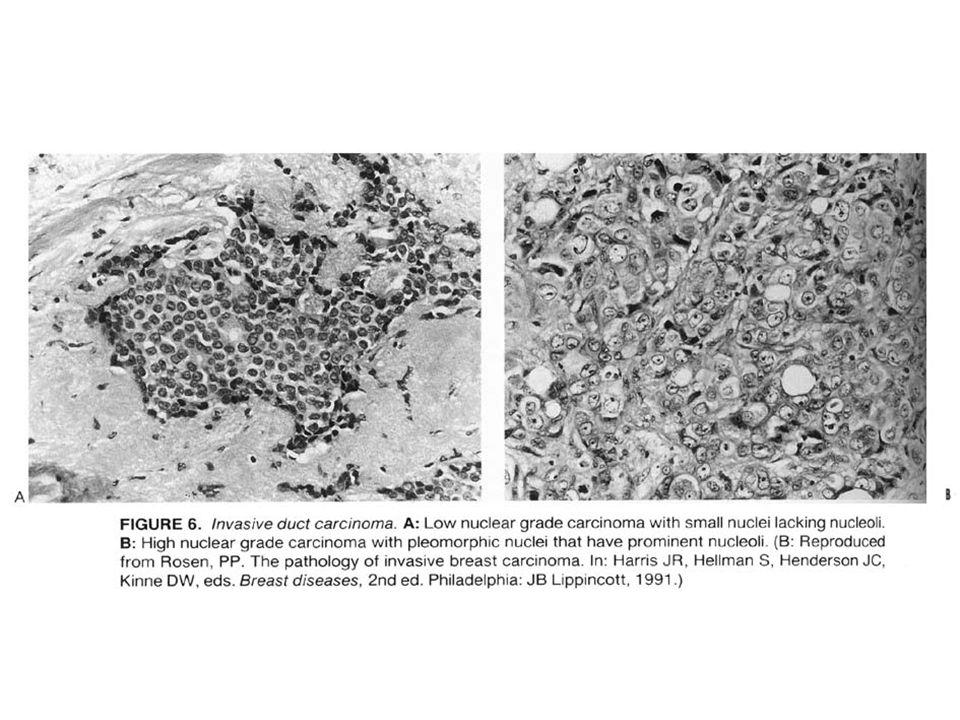 İnvaziv Lobüler Karsinom Bilateral, multisentrik olmaya eğilimli Diffüz infiltratif patern gösterir BOS'a daha sık metastaz yapar Hücreler duktal karsinomdan daha küçük çaplı, nükller grade düşük ve taşlı yüzük hücresi sıktır %90 İLCA ile birliktedir