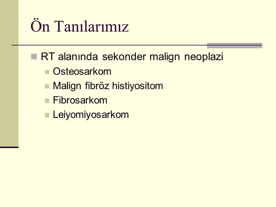 Ön Tanılarımız RT alanında sekonder malign neoplazi Osteosarkom Malign fibröz histiyositom Fibrosarkom Leiyomiyosarkom