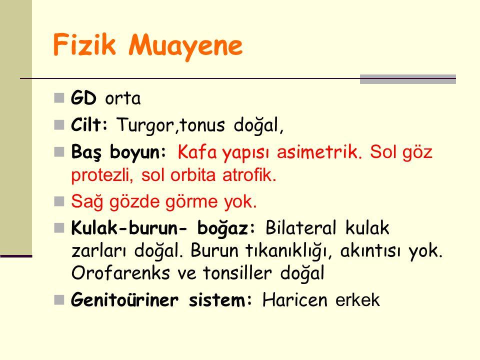 Fizik Muayene GD orta Cilt: Turgor,tonus doğal, Baş boyun: Kafa yapısı a simetrik. Sol göz protezli, sol orbita atrofik. Sağ gözde görme yok. Kulak-bu