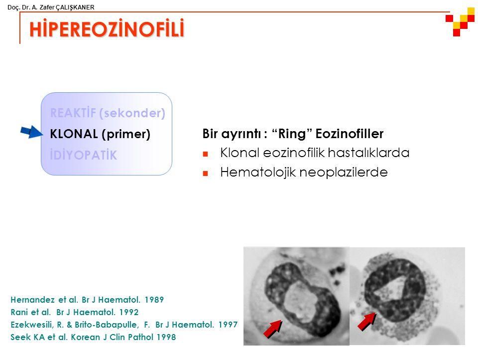 """Doç. Dr. A. Zafer ÇALIŞKANER HİPEREOZİNOFİLİ Bir ayrıntı : """"Ring"""" Eozinofiller Klonal eozinofilik hastalıklarda Hematolojik neoplazilerde Hernandez et"""