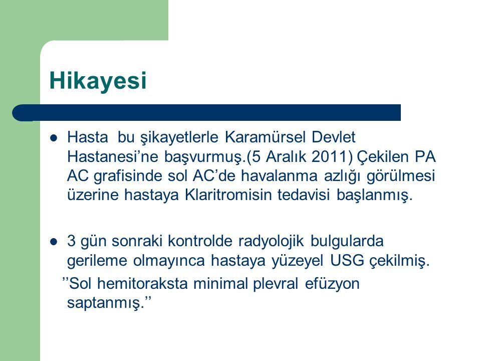 Hikayesi Hasta bu şikayetlerle Karamürsel Devlet Hastanesi'ne başvurmuş.(5 Aralık 2011) Çekilen PA AC grafisinde sol AC'de havalanma azlığı görülmesi