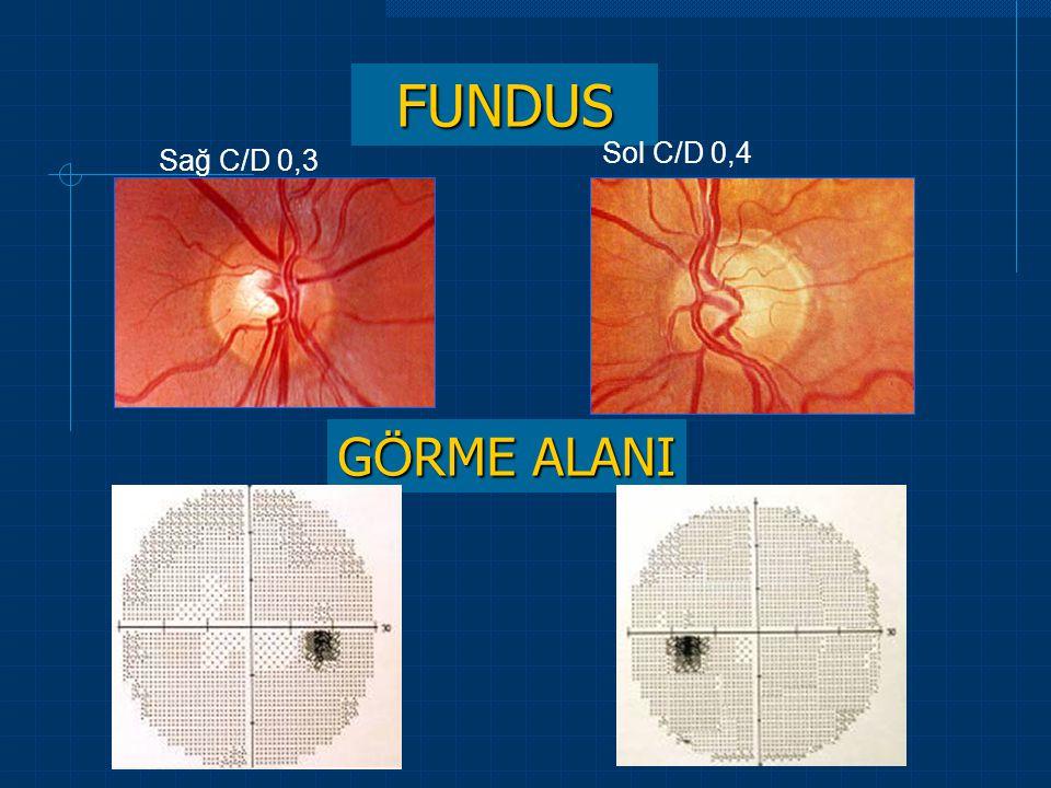 FUNDUS Sağ C/D 0,3 Sol C/D 0,4 G Ö RME ALANI