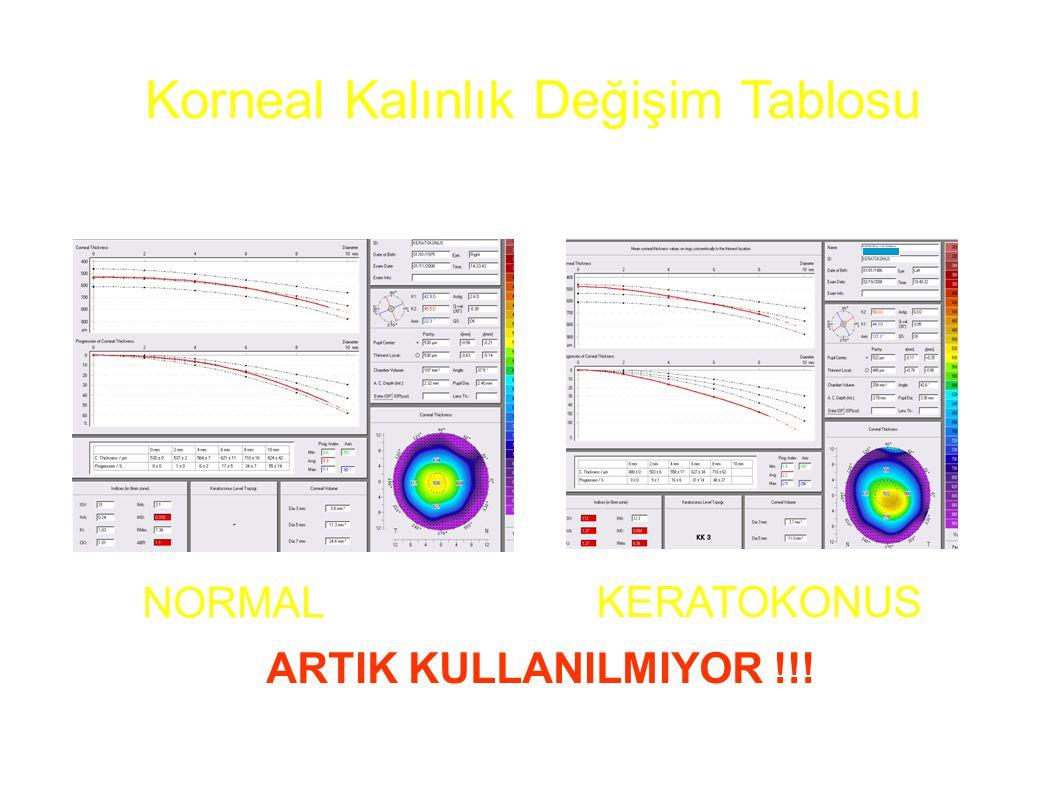 Korneal Kalınlık Değişim Tablosu NORMAL KERATOKONUS ARTIK KULLANILMIYOR !!!