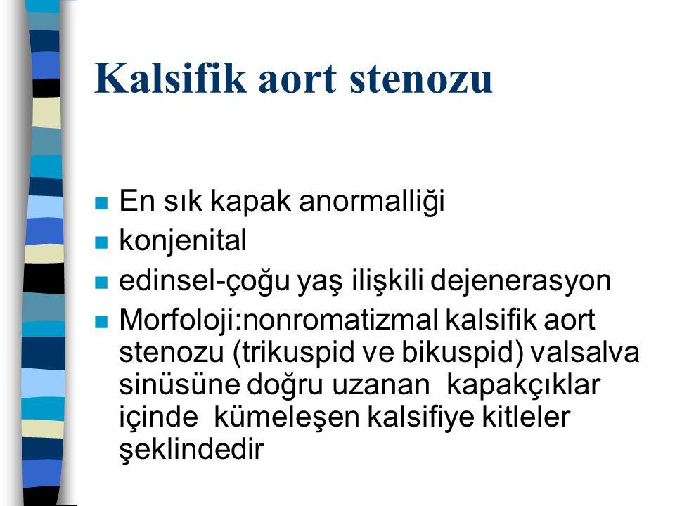 Kalsifik aort stenozu n En sık kapak anormalliği n konjenital n edinsel-çoğu yaş ilişkili dejenerasyon n Morfoloji:nonromatizmal kalsifik aort stenozu (trikuspid ve bikuspid) valsalva sinüsüne doğru uzanan kapakçıklar içinde kümeleşen kalsifiye kitleler şeklindedir