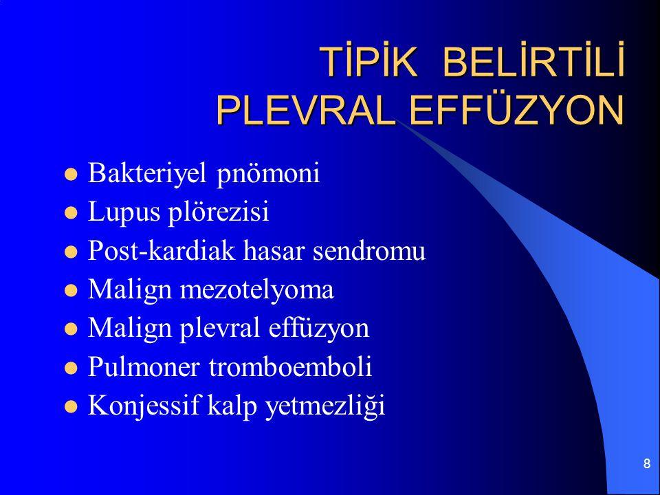8 TİPİK BELİRTİLİ PLEVRAL EFFÜZYON Bakteriyel pnömoni Lupus plörezisi Post-kardiak hasar sendromu Malign mezotelyoma Malign plevral effüzyon Pulmoner