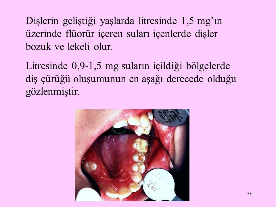36 Dişlerin geliştiği yaşlarda litresinde 1,5 mg'ın üzerinde flüorür içeren suları içenlerde dişler bozuk ve lekeli olur. Litresinde 0,9-1,5 mg suları