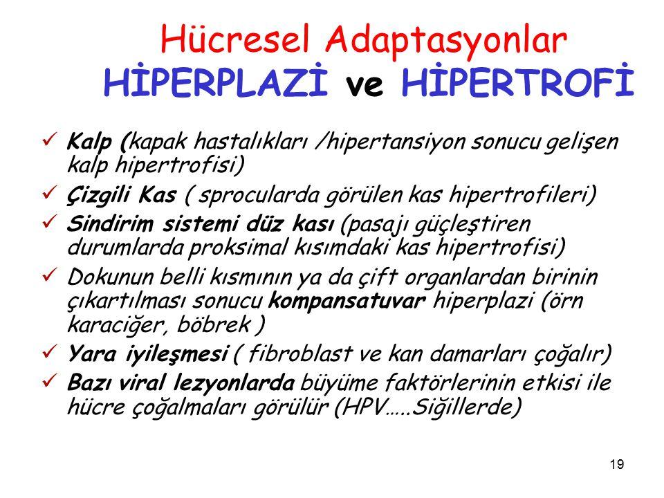 19 Hücresel Adaptasyonlar HİPERPLAZİ ve HİPERTROFİ Kalp (kapak hastalıkları /hipertansiyon sonucu gelişen kalp hipertrofisi) Çizgili Kas ( sprocularda görülen kas hipertrofileri) Sindirim sistemi düz kası (pasajı güçleştiren durumlarda proksimal kısımdaki kas hipertrofisi) Dokunun belli kısmının ya da çift organlardan birinin çıkartılması sonucu kompansatuvar hiperplazi (örn karaciğer, böbrek ) Yara iyileşmesi ( fibroblast ve kan damarları çoğalır) Bazı viral lezyonlarda büyüme faktörlerinin etkisi ile hücre çoğalmaları görülür (HPV…..Siğillerde)
