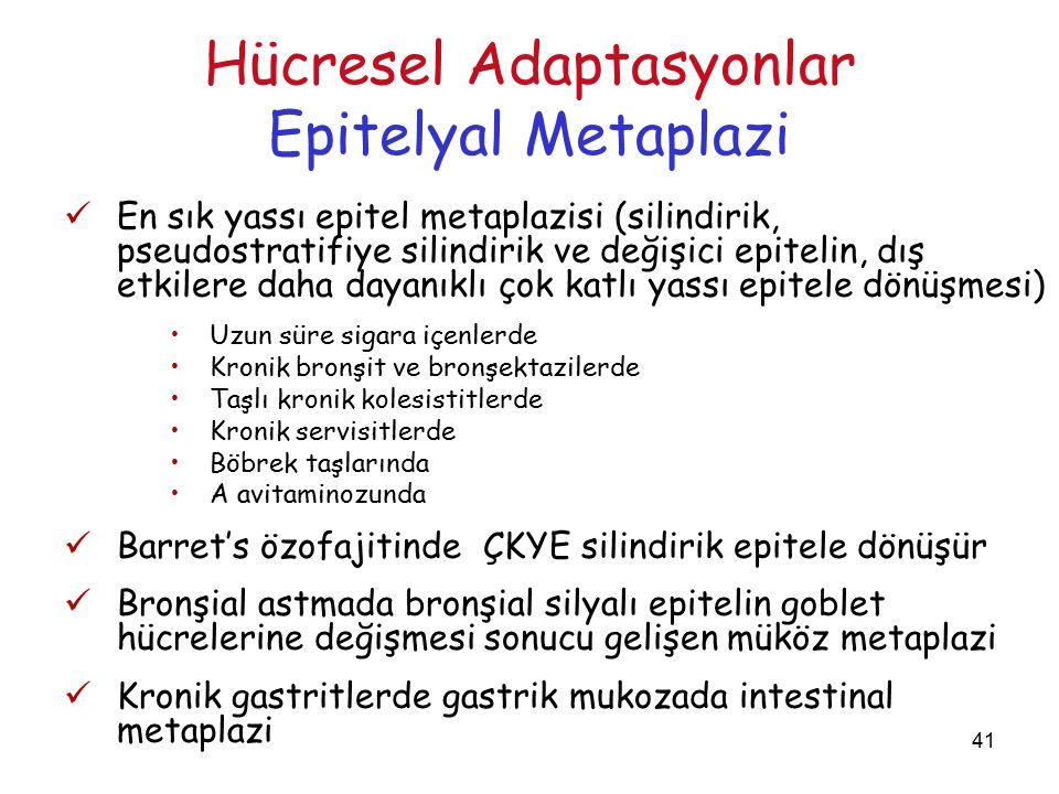 41 Hücresel Adaptasyonlar Epitelyal Metaplazi En sık yassı epitel metaplazisi (silindirik, pseudostratifiye silindirik ve değişici epitelin, dış etkilere daha dayanıklı çok katlı yassı epitele dönüşmesi) Uzun süre sigara içenlerde Kronik bronşit ve bronşektazilerde Taşlı kronik kolesistitlerde Kronik servisitlerde Böbrek taşlarında A avitaminozunda Barret's özofajitinde ÇKYE silindirik epitele dönüşür Bronşial astmada bronşial silyalı epitelin goblet hücrelerine değişmesi sonucu gelişen müköz metaplazi Kronik gastritlerde gastrik mukozada intestinal metaplazi