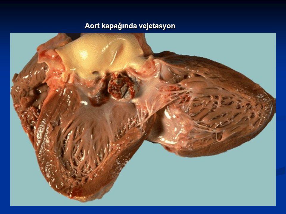 S.viridans IV penicillin ile 4 haftada tedavi edilir.