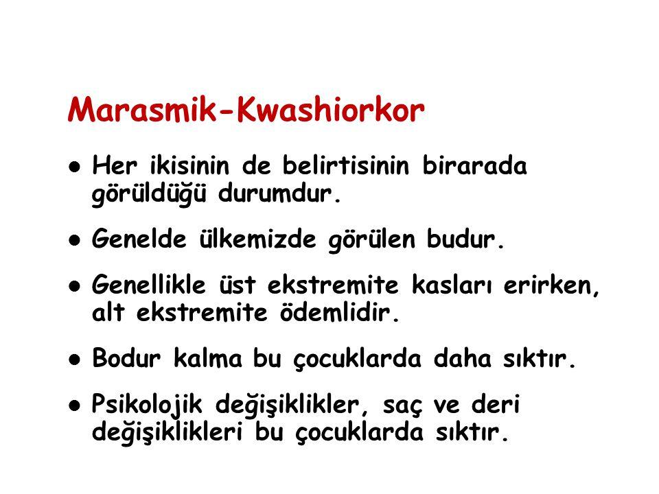 Marasmik-Kwashiorkor Her ikisinin de belirtisinin birarada görüldüğü durumdur. Genelde ülkemizde görülen budur. Genellikle üst ekstremite kasları erir