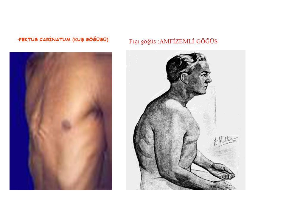 PEKTUS CARİNATUM (KUŞ GÖĞÜSÜ) Fıçı göğüs ;AMFİZEMLİ GÖĞÜS