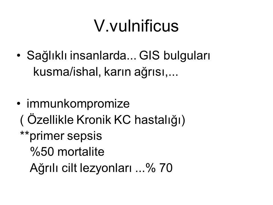 V.vulnificus Sağlıklı insanlarda... GIS bulguları kusma/ishal, karın ağrısı,... immunkompromize ( Özellikle Kronik KC hastalığı) **primer sepsis %50 m