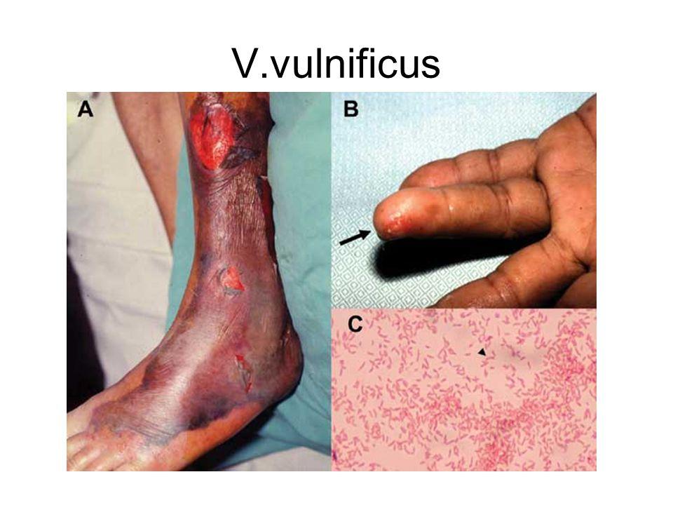 V.vulnificus