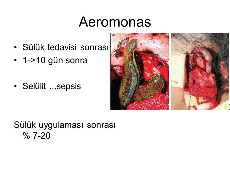 Aeromonas Sülük tedavisi sonrası 1->10 gün sonra Selülit...sepsis Sülük uygulaması sonrası % 7-20