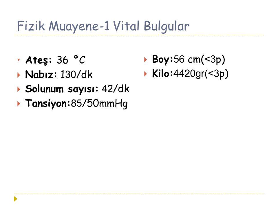 Fizik Muayene-1 Vital Bulgular Ateş: 36 °C  Nabız: 1 30 /dk  Solunum sayısı: 42 /dk  Tansiyon: 85 /50mmHg  Boy:56 cm(<3p)  Kilo:4420gr(<3p)