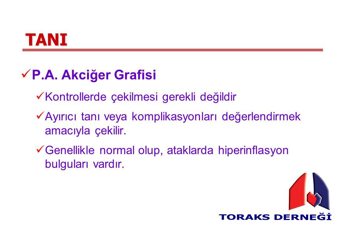 TANI P.A. Akciğer Grafisi Kontrollerde çekilmesi gerekli değildir Ayırıcı tanı veya komplikasyonları değerlendirmek amacıyla çekilir. Genellikle norma
