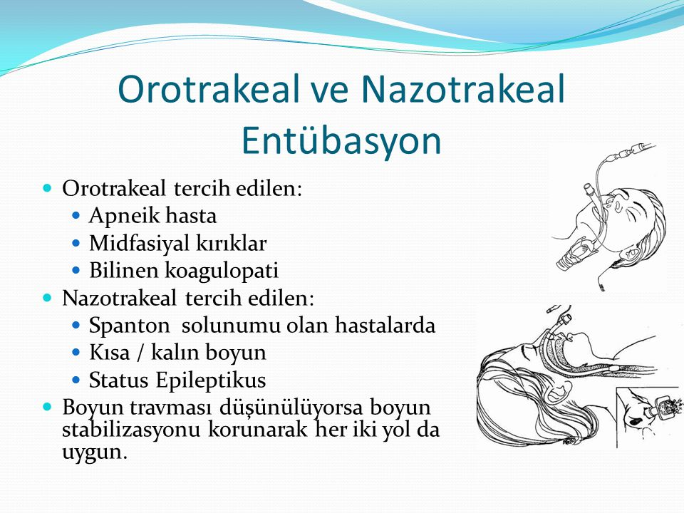 Orotrakeal ve Nazotrakeal Entübasyon Orotrakeal tercih edilen: Apneik hasta Midfasiyal kırıklar Bilinen koagulopati Nazotrakeal tercih edilen: Spanton