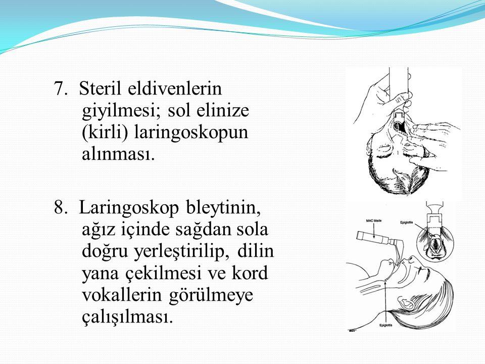 7. Steril eldivenlerin giyilmesi; sol elinize (kirli) laringoskopun alınması. 8. Laringoskop bleytinin, ağız içinde sağdan sola doğru yerleştirilip, d