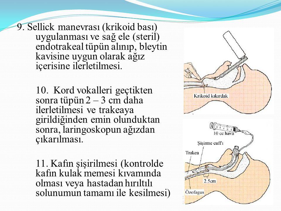 9. Sellick manevrası (krikoid bası) uygulanması ve sağ ele (steril) endotrakeal tüpün alınıp, bleytin kavisine uygun olarak ağız içerisine ilerletilme