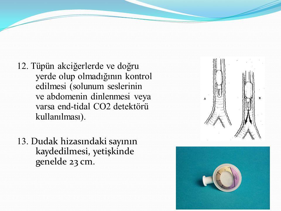 12. Tüpün akciğerlerde ve doğru yerde olup olmadığının kontrol edilmesi (solunum seslerinin ve abdomenin dinlenmesi veya varsa end-tidal CO2 detektörü