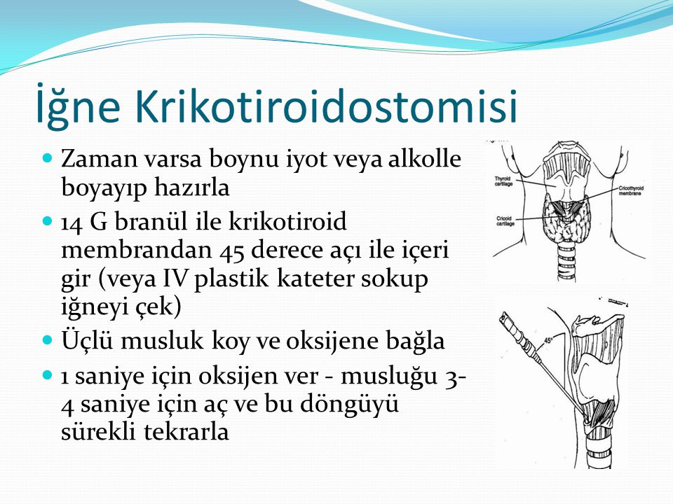 İğne Krikotiroidostomisi Zaman varsa boynu iyot veya alkolle boyayıp hazırla 14 G branül ile krikotiroid membrandan 45 derece açı ile içeri gir (veya