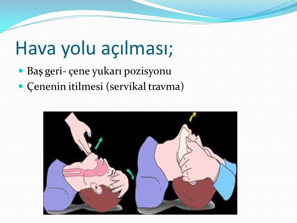 Özefagus entübasyonunu gösteren bulgular; - Solutma ile mide bölgesinin şişmesi.