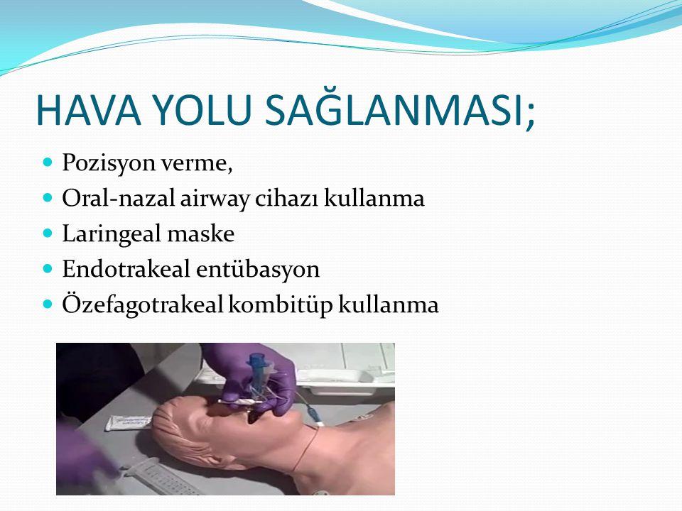 Üst Havayolu Orofaringeal airway Bilinçli hastada kullanma (öğürme ve kusmaya yol açar) http://www.youtube.com/watch?v= SvoJfxRbpkg Nazofaringeal airway Orta-yüz fraktürü varsa kullanma (kırıktan geçip beyne girebilir) Şiddetli koagulopatide (kanamaya yol açabilir) ve çocuklarda kontrendike http://www.youtube.com/watch?v= Cjt9RzWA83o