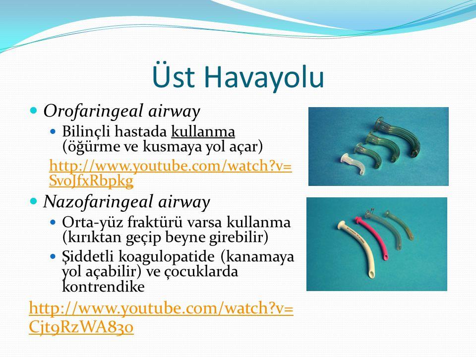 Üst Havayolu Orofaringeal airway Bilinçli hastada kullanma (öğürme ve kusmaya yol açar) http://www.youtube.com/watch?v= SvoJfxRbpkg Nazofaringeal airw