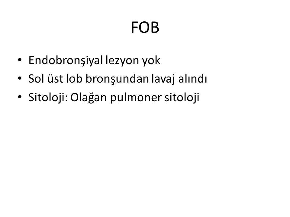 FOB Endobronşiyal lezyon yok Sol üst lob bronşundan lavaj alındı Sitoloji: Olağan pulmoner sitoloji
