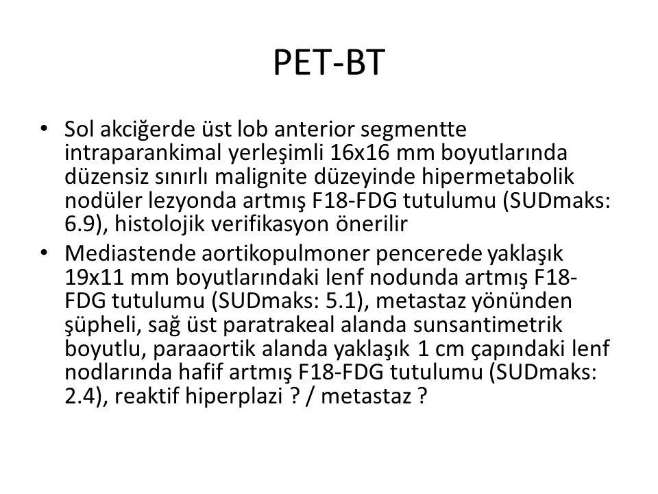 PET-BT Sol akciğerde üst lob anterior segmentte intraparankimal yerleşimli 16x16 mm boyutlarında düzensiz sınırlı malignite düzeyinde hipermetabolik nodüler lezyonda artmış F18-FDG tutulumu (SUDmaks: 6.9), histolojik verifikasyon önerilir Mediastende aortikopulmoner pencerede yaklaşık 19x11 mm boyutlarındaki lenf nodunda artmış F18- FDG tutulumu (SUDmaks: 5.1), metastaz yönünden şüpheli, sağ üst paratrakeal alanda sunsantimetrik boyutlu, paraaortik alanda yaklaşık 1 cm çapındaki lenf nodlarında hafif artmış F18-FDG tutulumu (SUDmaks: 2.4), reaktif hiperplazi .