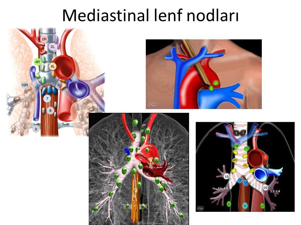 Mediastinal lenf nodları