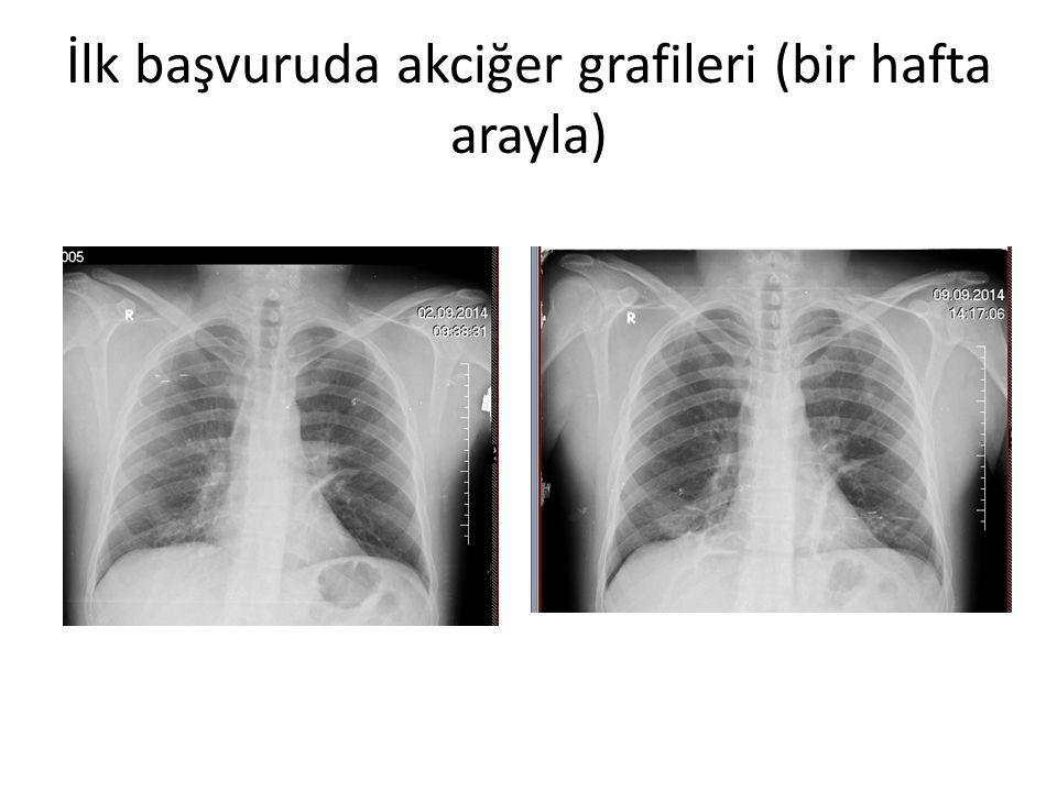İlk başvuruda akciğer grafileri (bir hafta arayla)