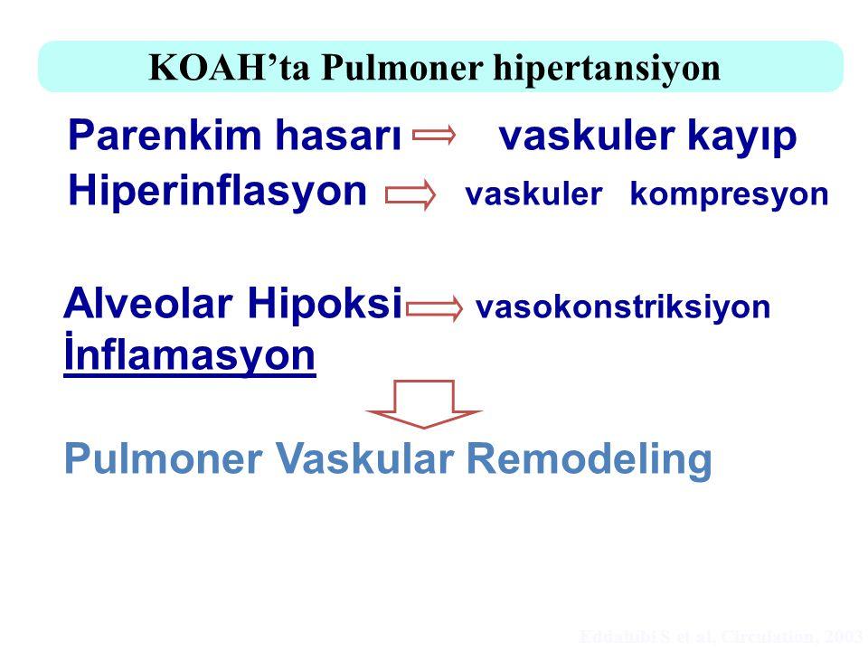 Parenkim hasarı vaskuler kayıp Hiperinflasyon vaskuler kompresyon KOAH'ta Pulmoner hipertansiyon - Alveolar Hipoksi vasokonstriksiyon İnflamasyon Pulm