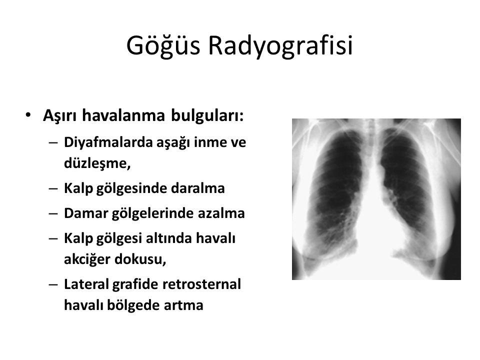 Göğüs Radyografisi Aşırı havalanma bulguları: – Diyafmalarda aşağı inme ve düzleşme, – Kalp gölgesinde daralma – Damar gölgelerinde azalma – Kalp gölg