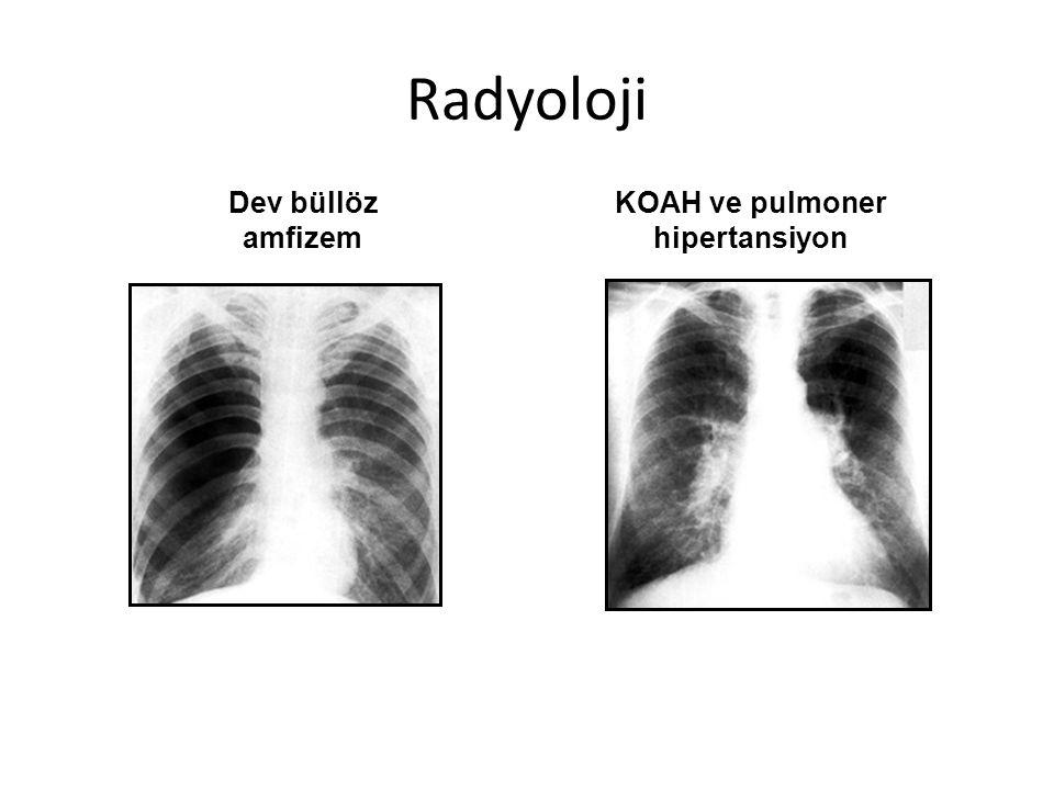 Dev büllöz amfizem KOAH ve pulmoner hipertansiyon