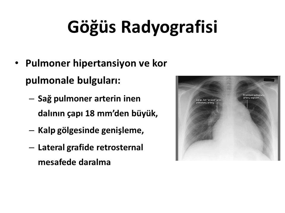 Göğüs Radyografisi Pulmoner hipertansiyon ve kor pulmonale bulguları: – Sağ pulmoner arterin inen dalının çapı 18 mm'den büyük, – Kalp gölgesinde geni