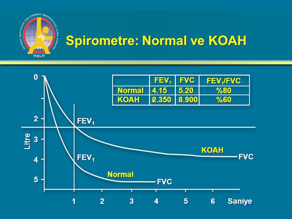 Spirometre: Normal ve KOAH 0 0 FEV 1 2 2 3 3 4 4 5 5 1 1 2 2 3 3 4 4 5 5 6 6 Saniye FEV 1 FVC Normal KOAH Litre FEV 1 FVC FEV 1 /FVC Normal KOAH 4.15