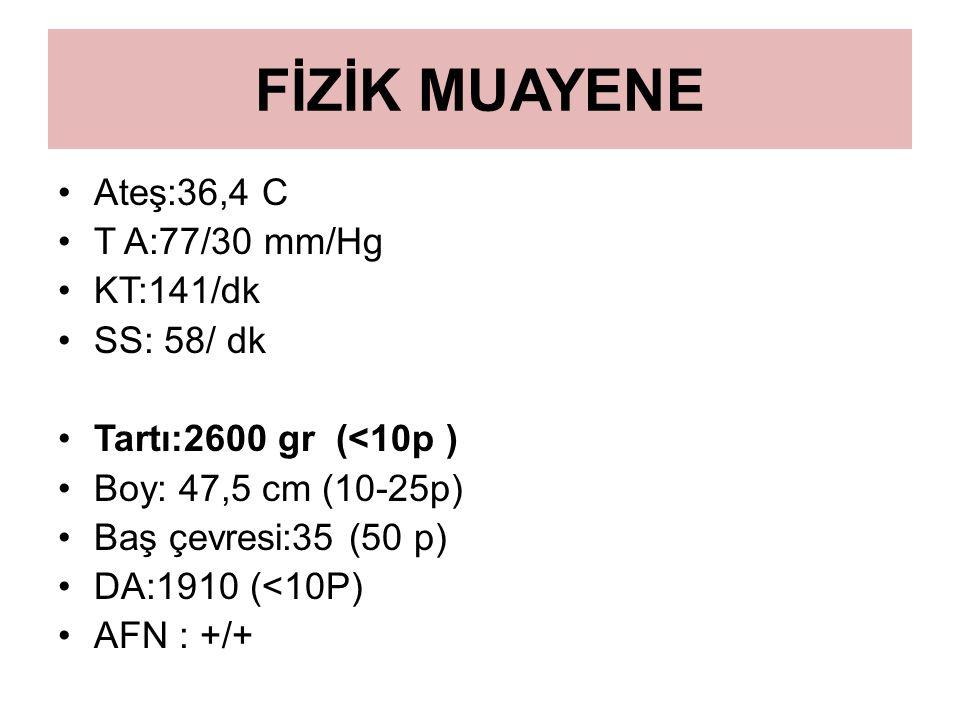 FİZİK MUAYENE Ateş:36,4 C T A:77/30 mm/Hg KT:141/dk SS: 58/ dk Tartı:2600 gr (<10p ) Boy: 47,5 cm (10-25p) Baş çevresi:35 (50 p) DA:1910 (<10P) AFN :