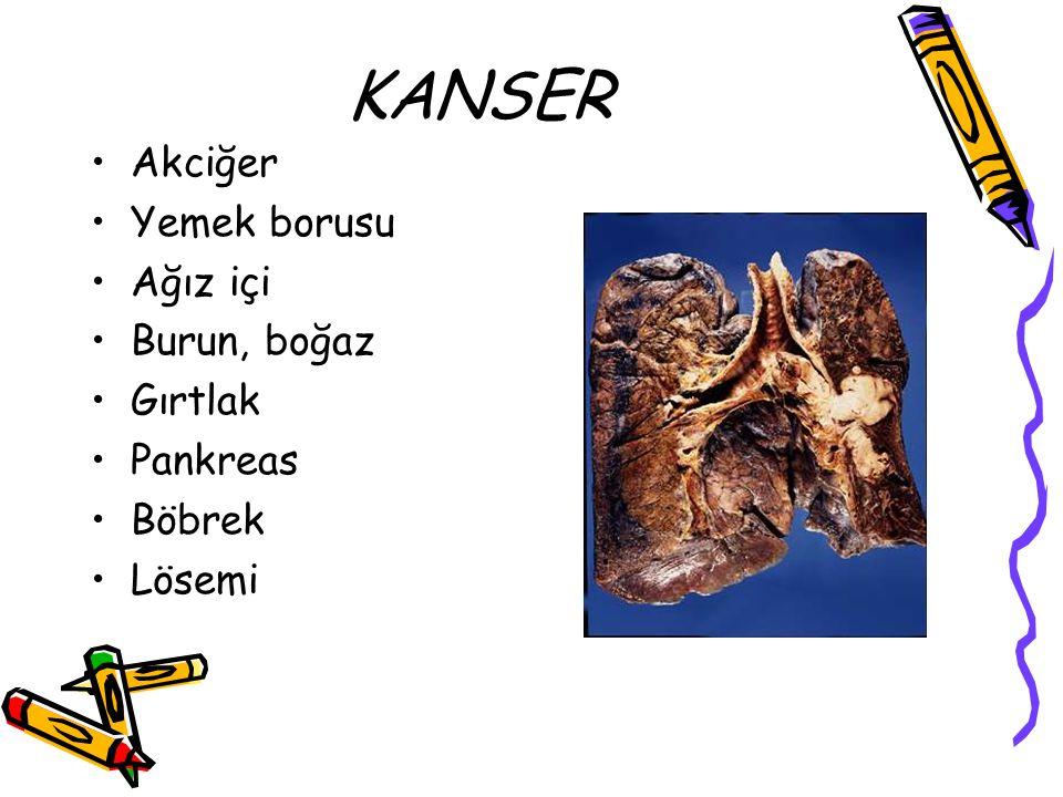 KANSER Akciğer Yemek borusu Ağız içi Burun, boğaz Gırtlak Pankreas Böbrek Lösemi