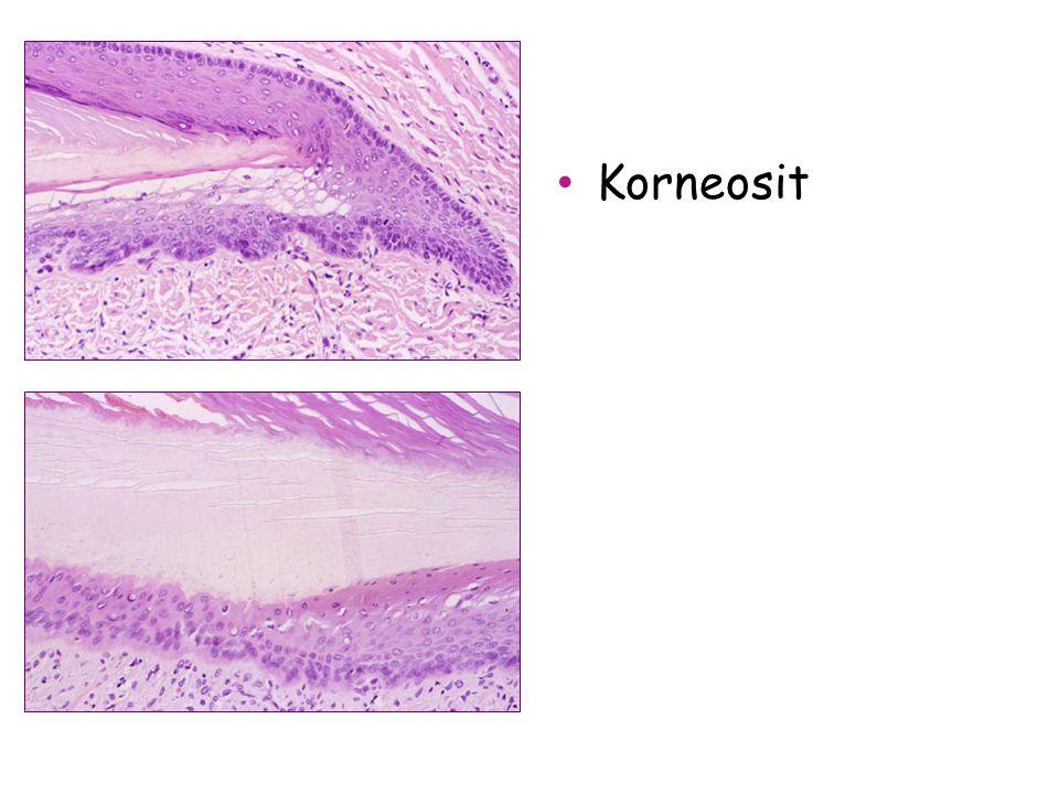 Korneosit