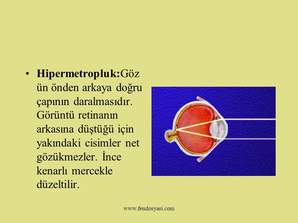 www.fendosyasi.com GÖZ KUSURLARI Miyopluk:Gözün önden arkaya doğru normalden uzun olmasıdır.