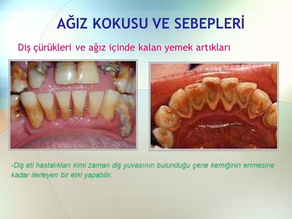 AĞIZ KOKUSU VE SEBEPLERİ Diş çürükleri ve ağız içinde kalan yemek artıkları -Diş eti hastalıkları kimi zaman diş yuvasının bulunduğu çene kemiğinin er