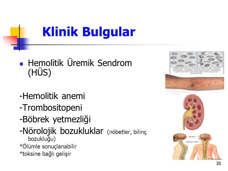 30 Klinik Bulgular Hemolitik Üremik Sendrom (HÜS) -Hemolitik anemi -Trombositopeni -Böbrek yetmezliği -Nörolojik bozukluklar (nöbetler, bilinç bozuklu