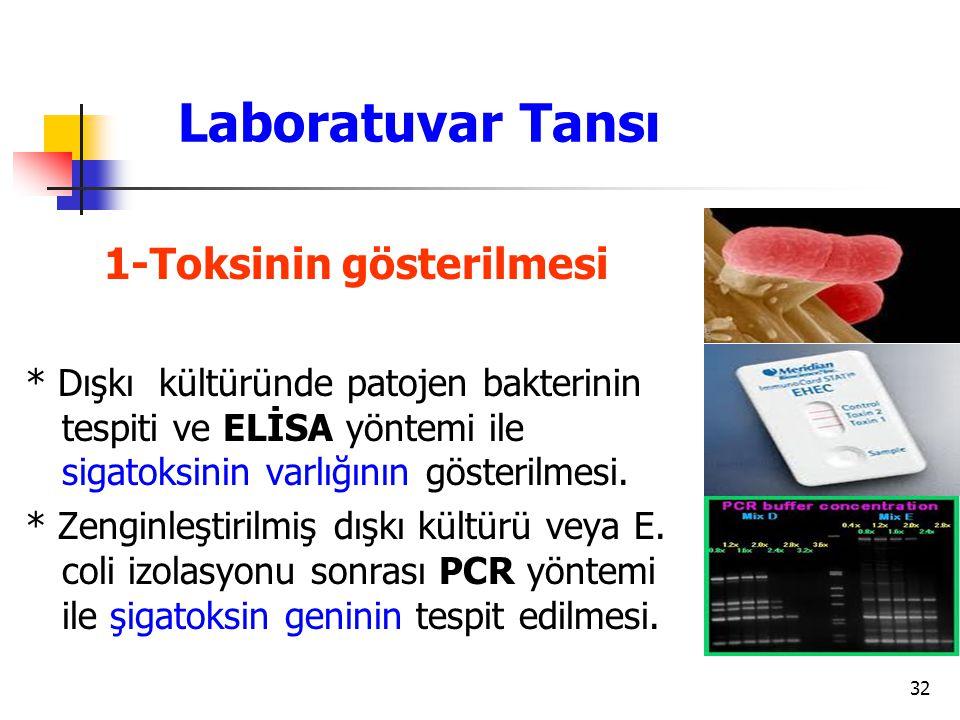 32 Laboratuvar Tansı 1-Toksinin gösterilmesi * Dışkı kültüründe patojen bakterinin tespiti ve ELİSA yöntemi ile sigatoksinin varlığının gösterilmesi.