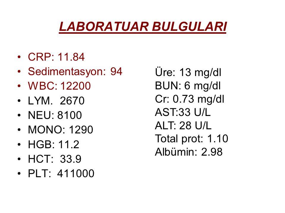 LABORATUAR BULGULARI CRP: 11.84 Sedimentasyon: 94 WBC: 12200 LYM.