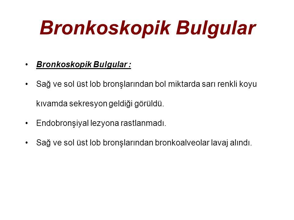 Bronkoskopik Bulgular Bronkoskopik Bulgular : Sağ ve sol üst lob bronşlarından bol miktarda sarı renkli koyu kıvamda sekresyon geldiği görüldü.